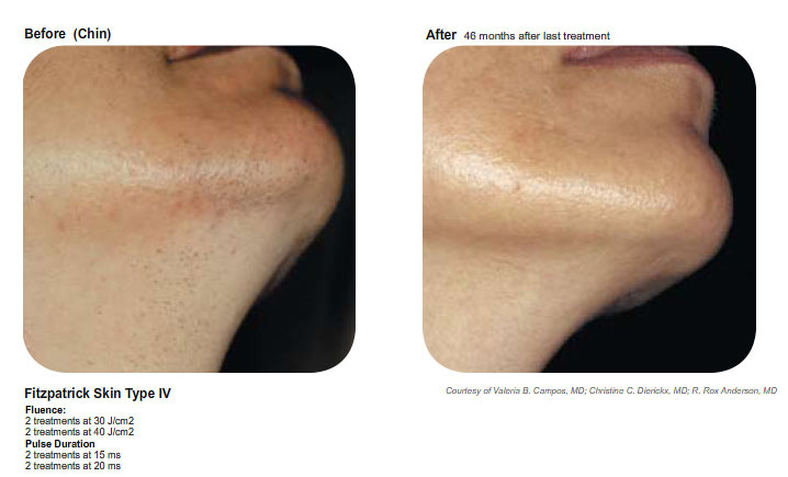 Lucie M Laser Hair Removal 7.jpg