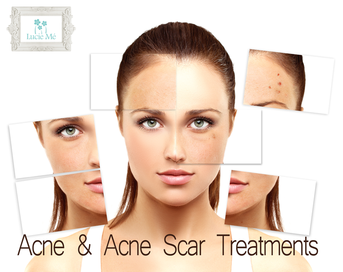 Blog lucie me medical spa for Acne salon treatments